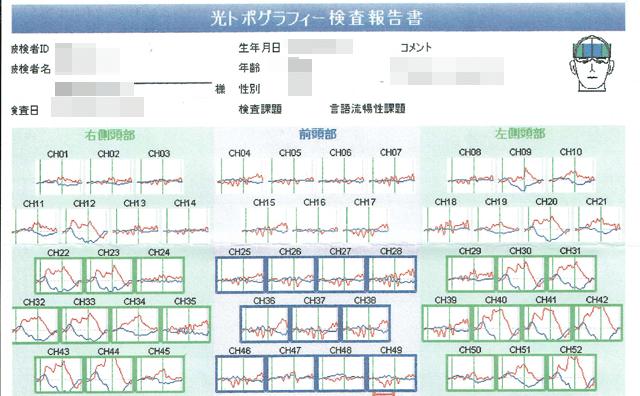 光トポグラフィー検査